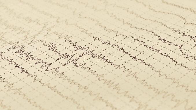 EEG von Epilepsie bei Katze